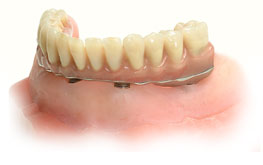 implant-retained-dentures_img1